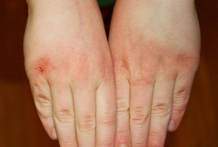 Почему трескается кожа на руках зимой