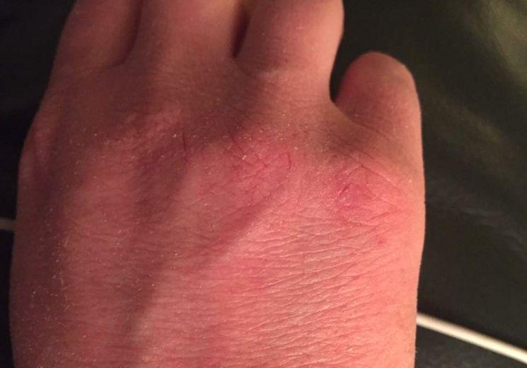 Шелушение кожи рук от мороза