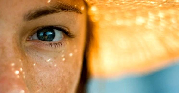 Ультрафиолетовые лучи и пигментные пятна