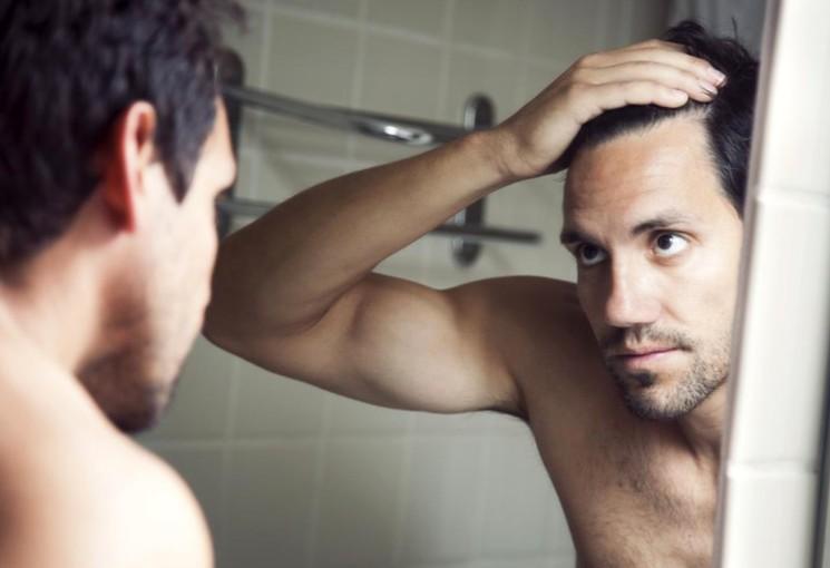 Выпадение волос - облысение